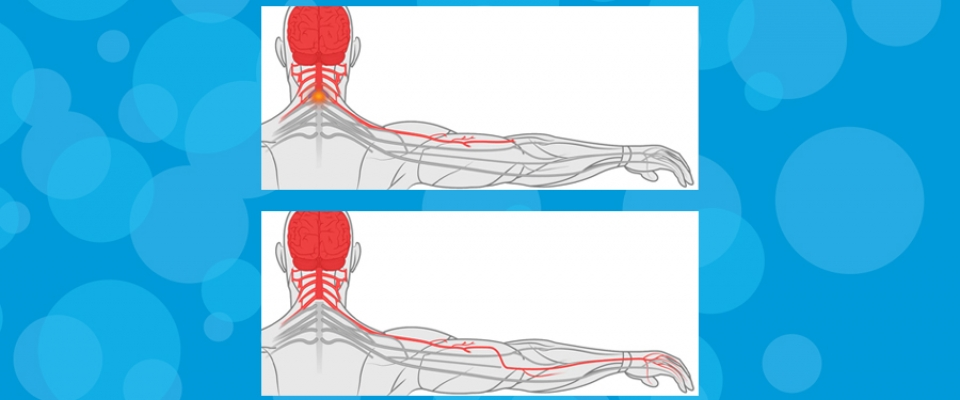 Rehabilitation After Nerve Transfer Figure