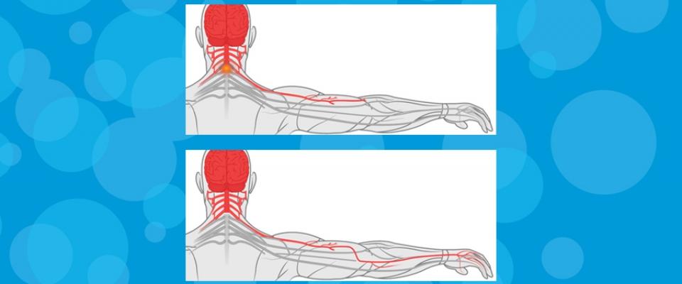 Rehabilitation After Nerve Transfer Figure