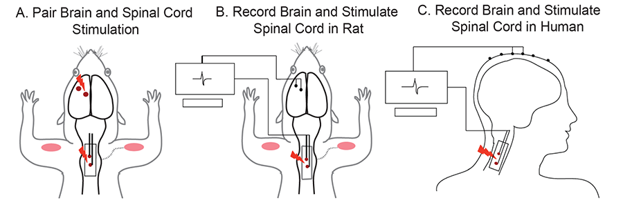 Travis Roy: Brain-Triggered Spinal Cord Stimulation Figure