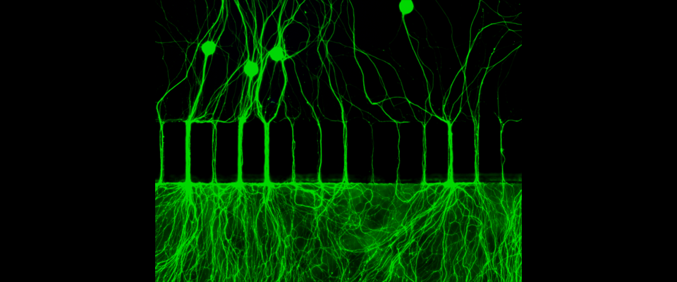 Epifluorescent image of DRG neurons grown in microfluidic devices.