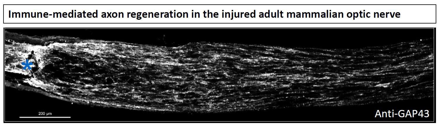 Immune-mediated axon regeneration in the injured adult mammalian optic nerve