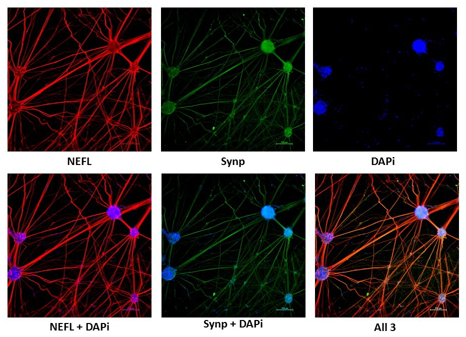 Neurons derived from iPSC