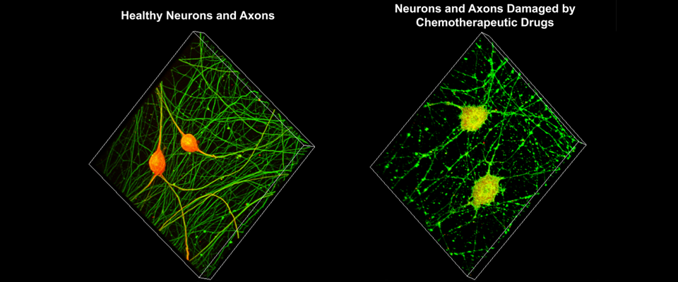 3-D rendering of confocal z-stacks of dorsal root ganglion neurons.